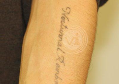 Amateur Forearm Tattoo Before