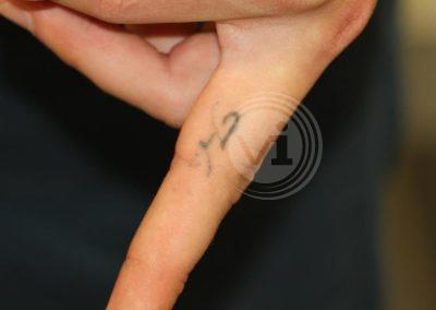 Black Finger Tattoo Before