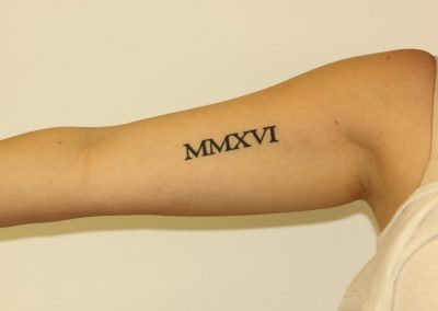 Black Inner Bicep Roman Numeral Tattoo Before Laser Tattoo Removal