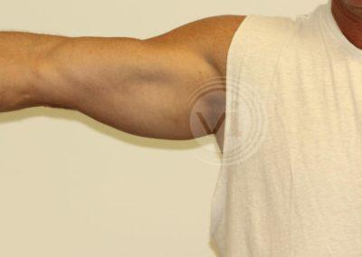 Black Inner Bicep Tattoo After