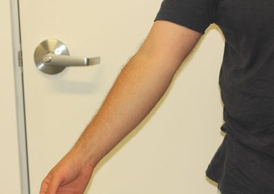 Black Inner Forearm Tattoo After Laser Tattoo Removal