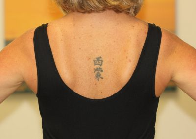 Black Japanese back tattoo before laser tattoo removal