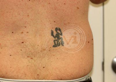 Black Lower Back Tattoo Before
