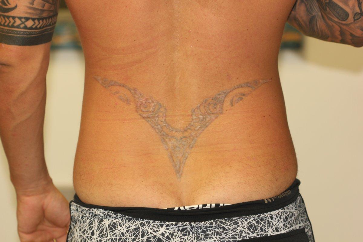 Black Lower Back Tattoo Before Laser