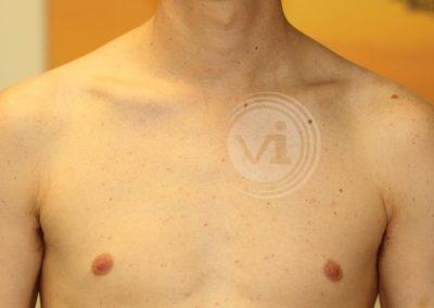 Black Shoulder Tribal Tattoo After