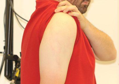 Black Tribal Shoulder Tattoo After Laser Tattoo Removal