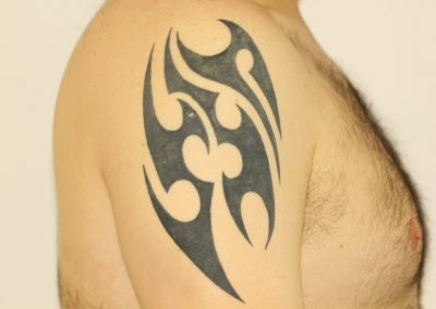Black Tribal Shoulder Tattoo Before Laser Tattoo Removal