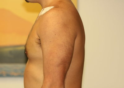 Black Tribal Tattoo After Laser Tattoo Removal