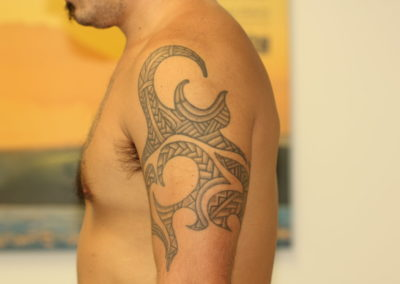 Black Tribal Tattoo Before Laser Tattoo Removal