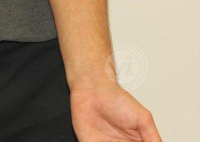 Black Wrist Tattoo After