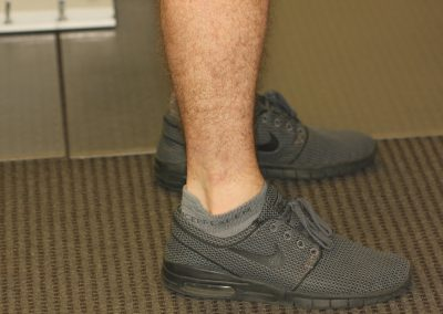 Black ankle dog tattoo after laser tattoo removal