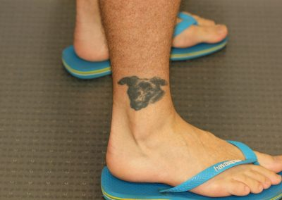 Black ankle dog tattoo before laser tattoo removal
