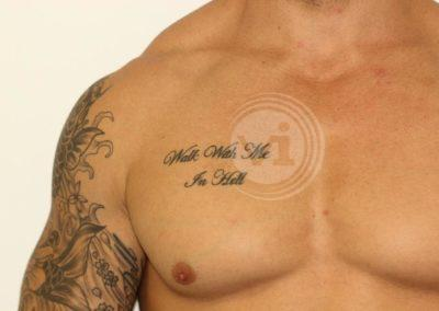 Black-chest-tattoo-before-laser