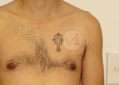 Black-crucefix-tattoo-on-chest-before-laser