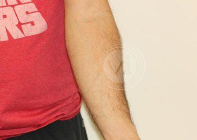 Black-flame-forearm-tattoo-after-laser