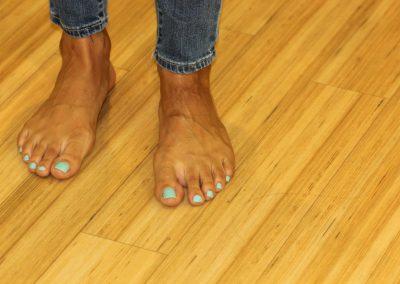 Black foot tattoo after laser tattoo removal