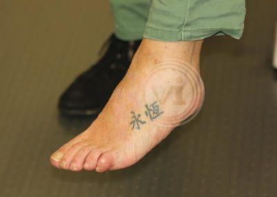 Black-foot-tattoo-after-partial-laser-removal