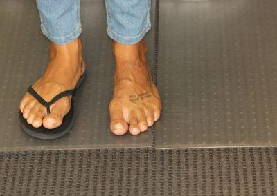 Black foot tattoo before laser tattoo removal