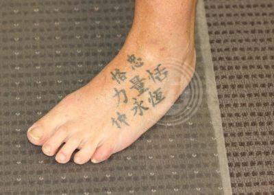 Black-foot-tattoo-before-partial-laser-removal