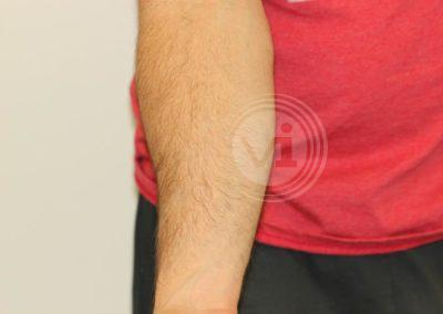 Black-forearm-tattoo-after-laser