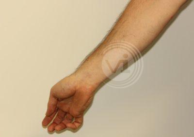 Black-inner-wrist-sun-tattoo-after-laser