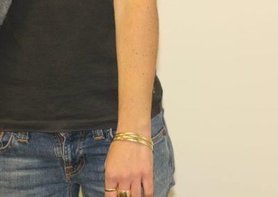 Black line wrist tattoo after laser tattoo removal