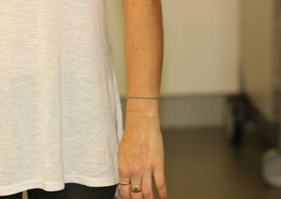 Black line wrist tattoo before laser tattoo removal
