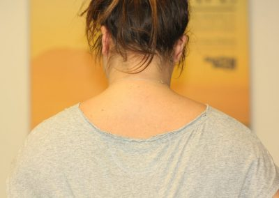 Black name neck tattoo after laser tattoo removal