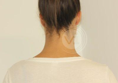 Black-name-tattoo-on-neck-after-laser