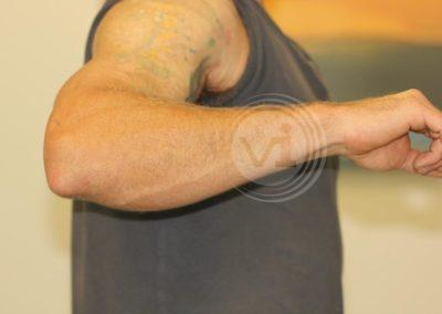 Black-outer-forearm-tattoo-after-laser