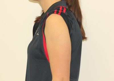 Black shoulder rose tattoo after laser tattoo removal