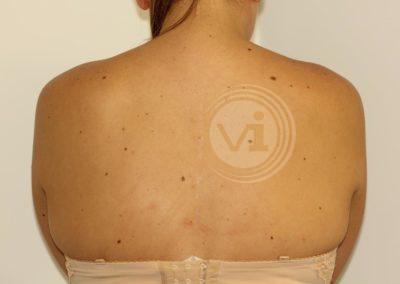 Black-spine-tattoo-after-laser