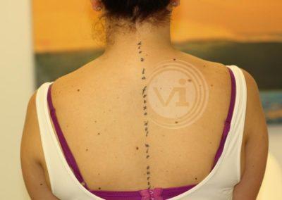 Black-spine-tattoo-before-laser