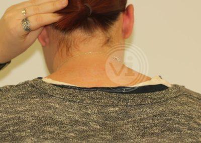 Black-upper-back-tattoo-after-laser