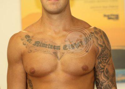 Chest-Tattoo-Before-Laser