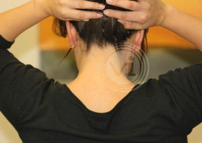 Colourd-neck-tattoo-after-laser