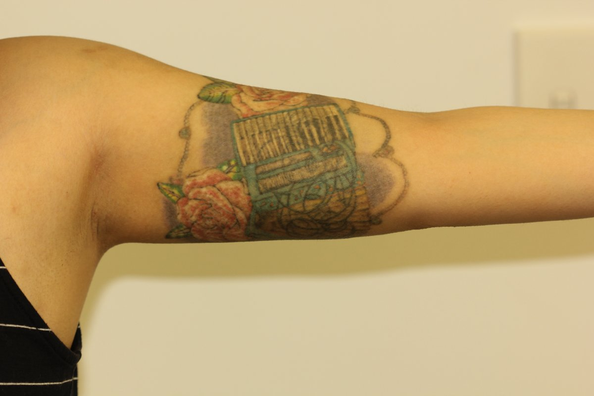 Coloured Cover Up Inner Bicep Tattoo After Laser