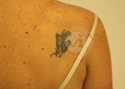 Coloured-butterfly-tattoo-before-laser