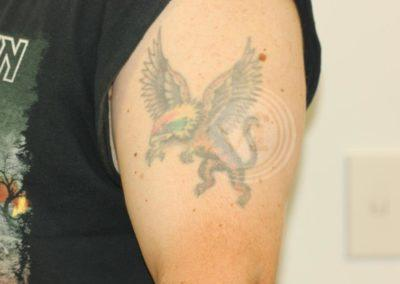 Coloured-flying-tiger-tattoo-before-laser