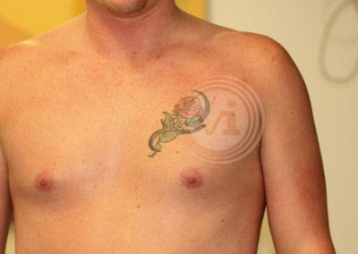 Coloured-rose-chest-tattoo-before-laser