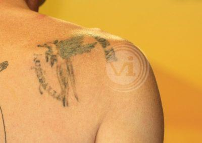 Coloured-shoulder-tattoo-after-laser-fade
