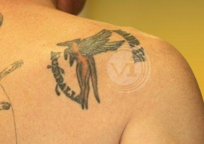 Coloured-shoulder-tattoo-before-laser