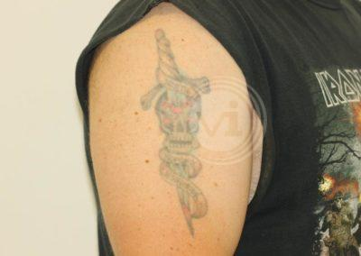 Coloured-skull-and-dagger-tattoo-before-laser