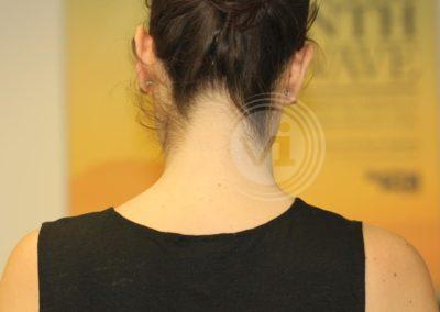 Dark-black-butterfly-neck-tattoo-after-laser