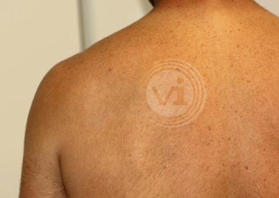 Dark-black-panther-tattoo-after-laser