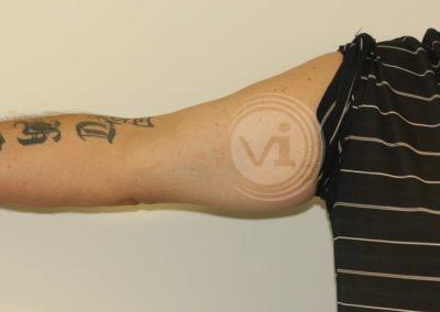 Dark-inner-bicep-tattoo-after-laser