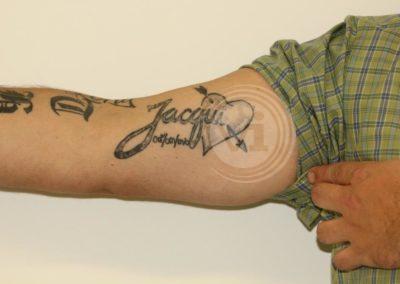 Dark-inner-bicep-tattoo-before-laser