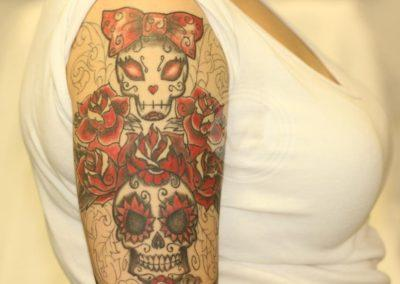 Laser Tattoo Removal Progress Photos