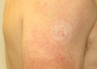 Large-dark-black-shoulder-tattoo-after-laser-removal