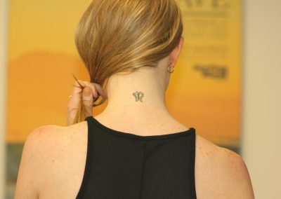 Neck Butterfly Tattoo Before Tattoo Removal
